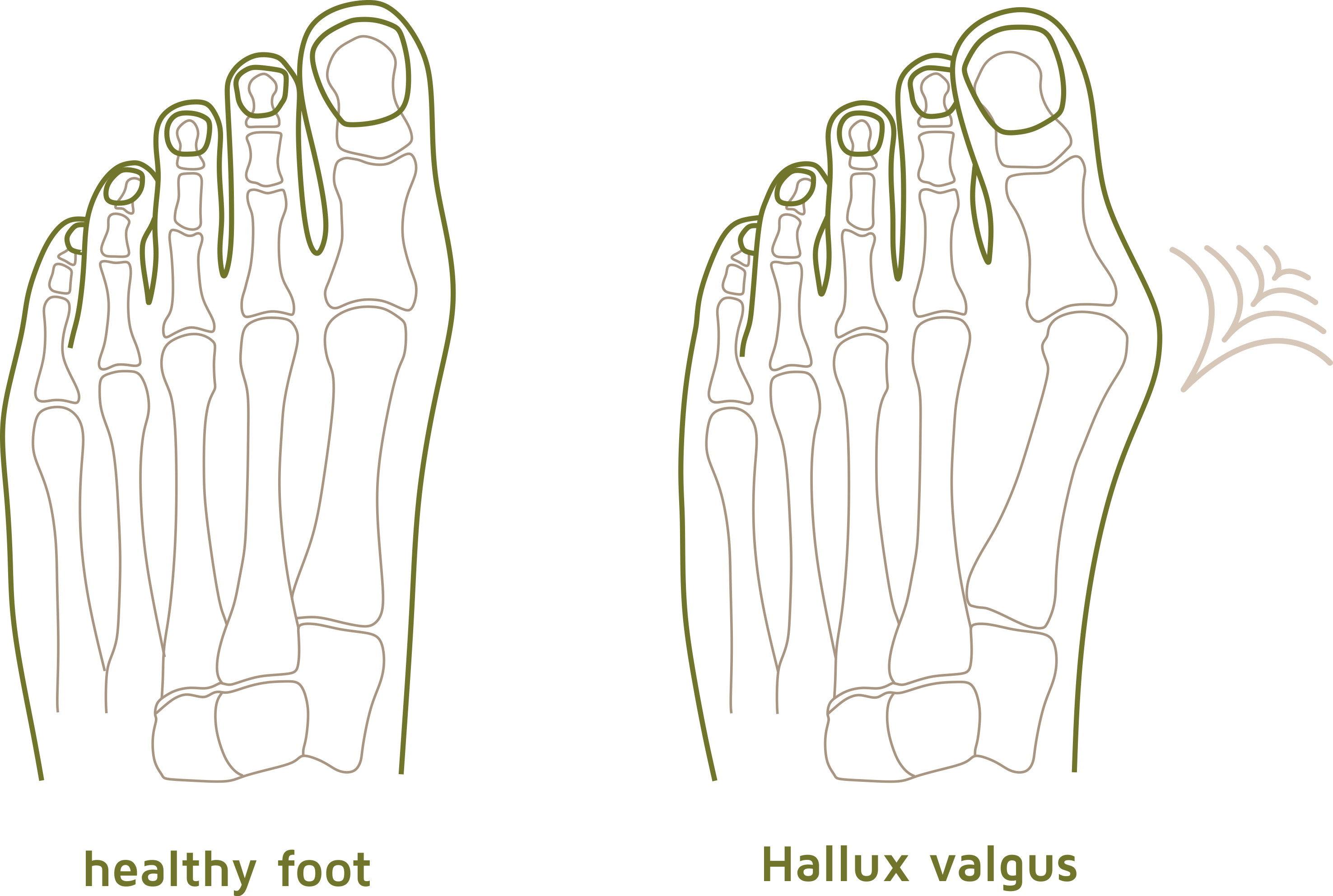 Hallux Valgus Darstellung (Englisch)1